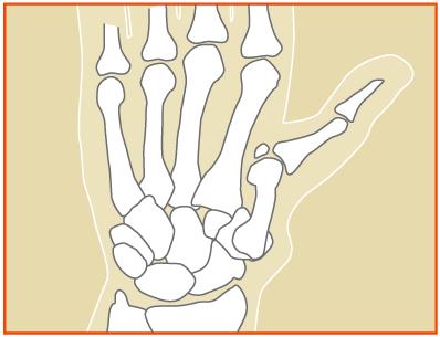 Artritis en la base del pulgar
