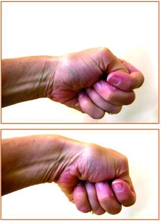 Tendonitis in my thumb